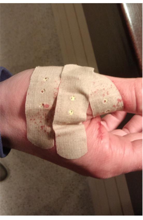 фото кот поцарапал руку